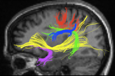 Probabilistic tractography of arched beams, beams uncinate, superior longitudinal beams II, superior longitudinal beams III, upper longitudinal beams and lower fronto-occipital beams for a lesioned participant