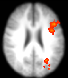 Axial section of functional magnetic resonance imaging showing the unilateral activation of the prefrontal cortex in young people at matching task