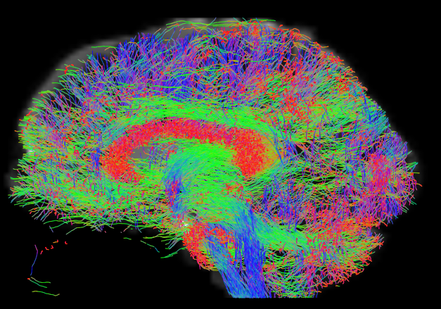 Representation of white matter tracts using the diffusion tensor imaging