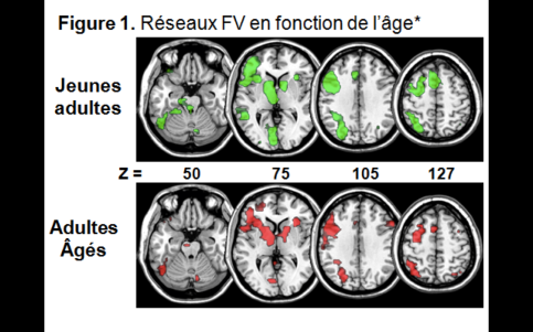 Functional networks contributing to lexical evocation task in young and older participants.