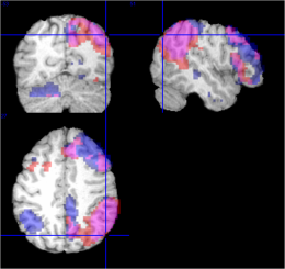 Ventral attentional networks obtained during an independent component analysis. In blue, younger participants, older participants in red and in purple networks that are common for both groups